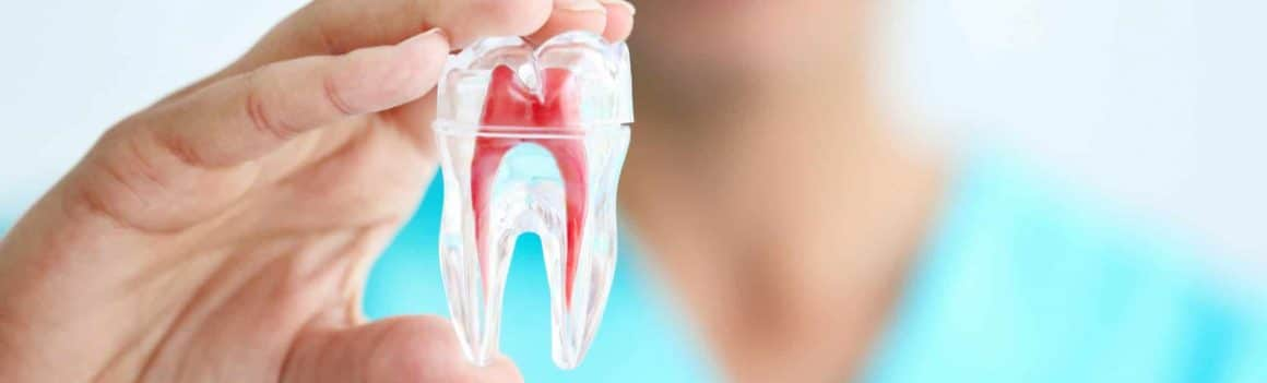 Cavities and Tooth Decay Treatment